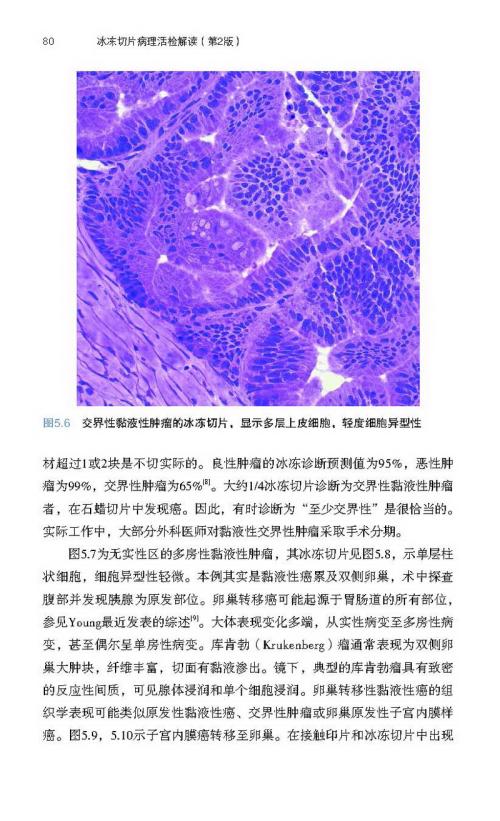 诊断和发出术中冰冻切片检查报告